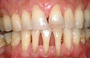 Reduction of the gingival margin of the front teeth at