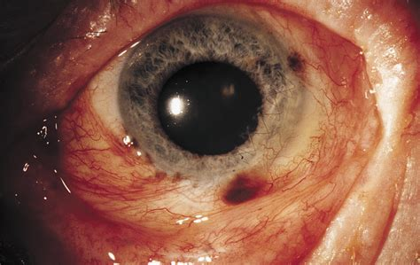 Malignant Melanoma of the Conjunctiva With Intraocular