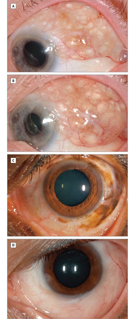 Giant Conjunctival Nevus: Clinical Features and Natural